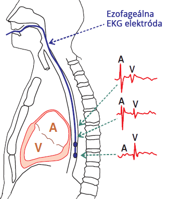 ECG esophageal recording electrode, atrical activity, ventricular activity
