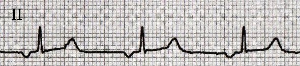 ECG ectopic inverted retrograde P wave, with ectopic atrial rhythm