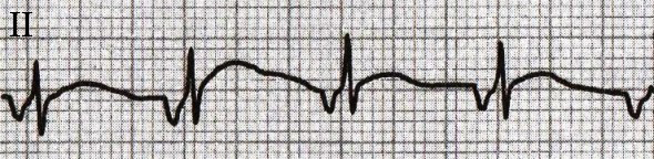 ECG inverted retrograde P wave in the inferior leads, with accelerated junctional rhythm