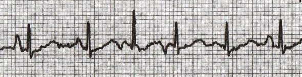 ECG variable P wave morphology. 4 different P waves, multifocal atrial tachycardia