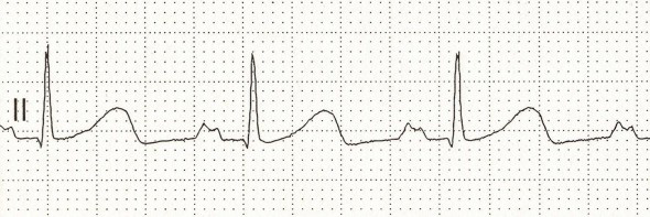 ECG P mitrale, notched (bifid) P wave si sign of left atrial enlargement (hypertrophy) due to mitral stenosis