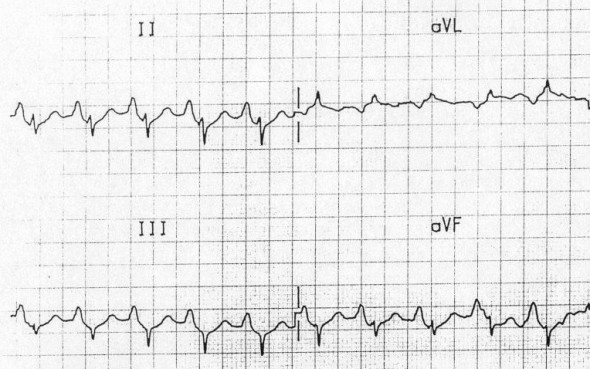 ECG P pulmonale, tall peaked P wave is sign of right atrial enlargement (hypertrophy) due to pulmonary hypertension