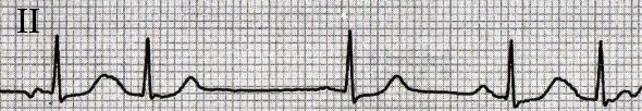 ECG multiple P wave morphologies, more than 3 different P waves, Multifocal atrial rhythm