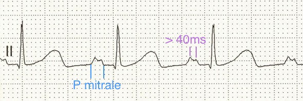 ECG p mitrale and left atrial abnormality in lead II (bifid P wave)