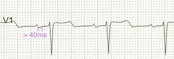 ECG p mitrale and left atrial dilatation in lead V1 (biphasic P wave)