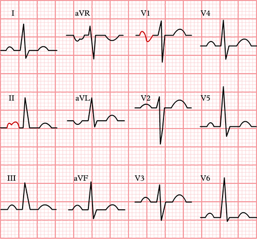 ECG p mitrale and left atrial hypertrophy in lead II (bifid P wave) and lead V1 (biphasic P wave)