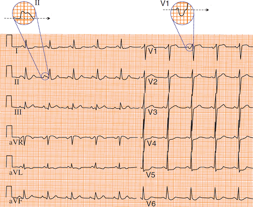 ECG p mitrale in lead II (bifid P wave) and lead V1 (biphasic P wave)