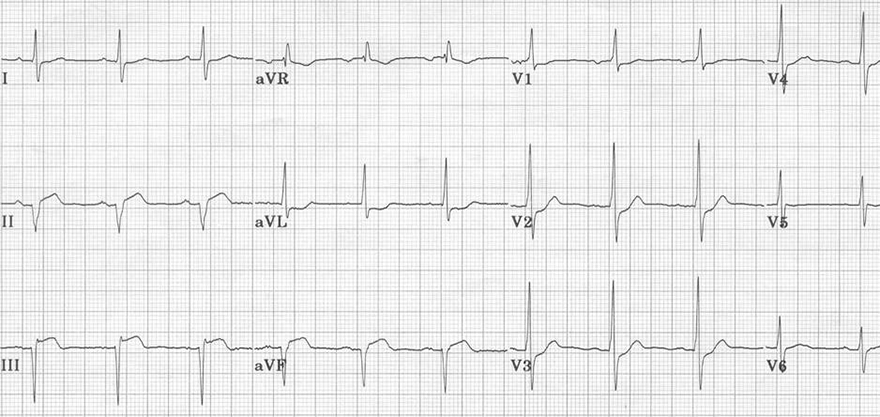 ECG pathological q wave due to prior inferior stemi myocardial infarction