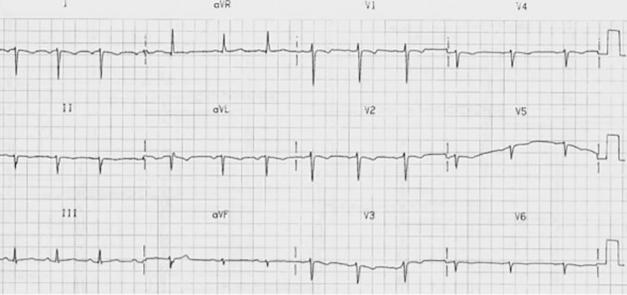 ECG dextrocardia and poor r wave progression, right axis deviation