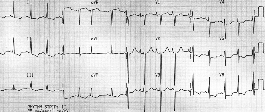 ECG dilatation cardiomyopathy and poor r wave progression, P biatriale, biatrial hypertrophy, left and right ventricular hypertrophy