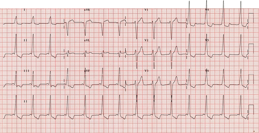 ECG WPW syndrome type B and poor R wave progression