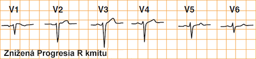 ecg poor r wave progression in chest leads