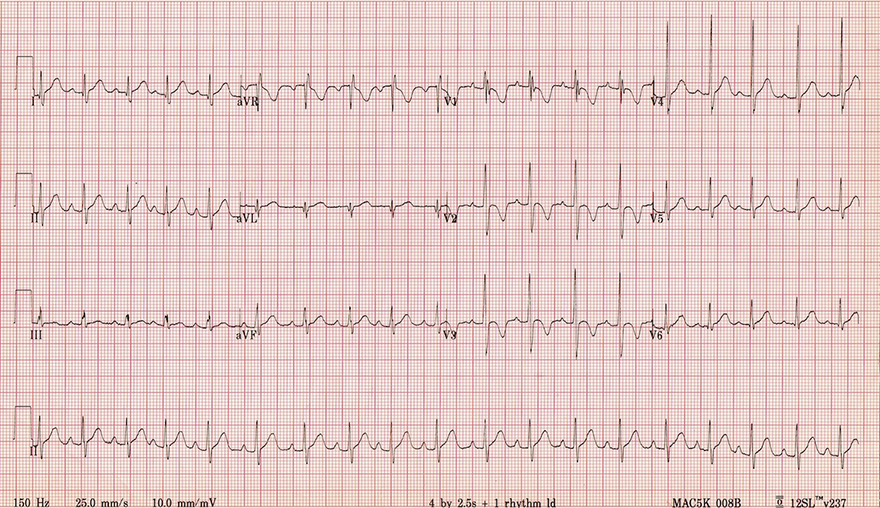 ECG 2 years old child with sinus tachycardi, right ventricular hypertrophy and dominant R wave in V1