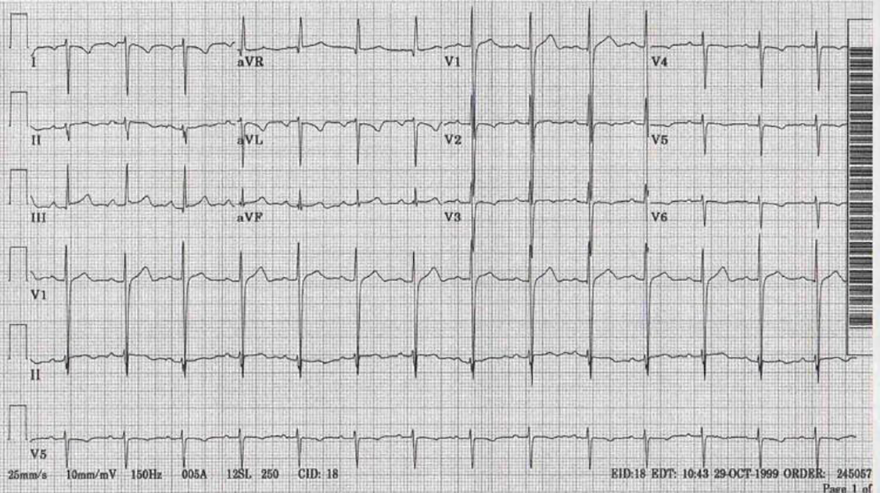 ECG dominant R wave V1 and dextrocardia