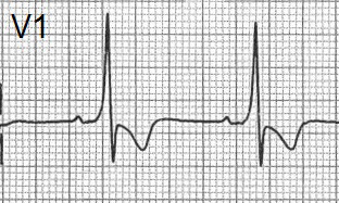 ECG dominant R wave V1 and wpw syndrome type 1, delta wave