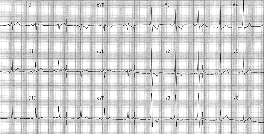 ECG dominant r wave V1 and WPW syndrome type A