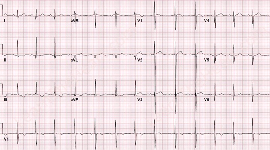 ECG dominant R wave V1 and hypertrophic cardiomyopathy