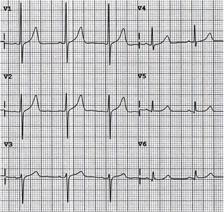 ECG precordial V1 V3 lead misplacement and dominant R wave V1