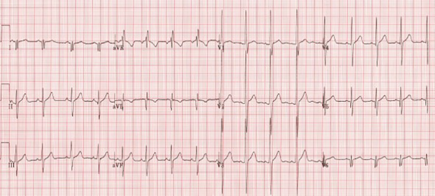 ECG dominant R wave V1 and muscular dystrophy