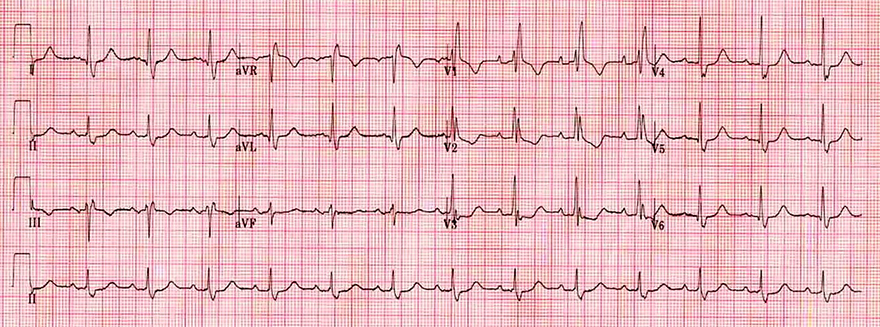 ECG dominant R wave V1 and complete right bundle branch block (RBBB)