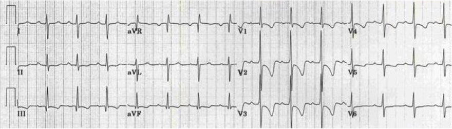ECG dominant R wave V1 due to right ventricular hypertrophy