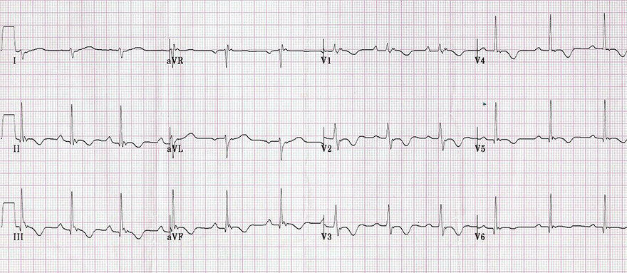 ECG inverted T waves and arrhythmogenic right ventricular cardiomyopathy, dysplasia (ARVC, ARVD)
