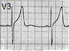 ECG T wave and benign early repolarisation