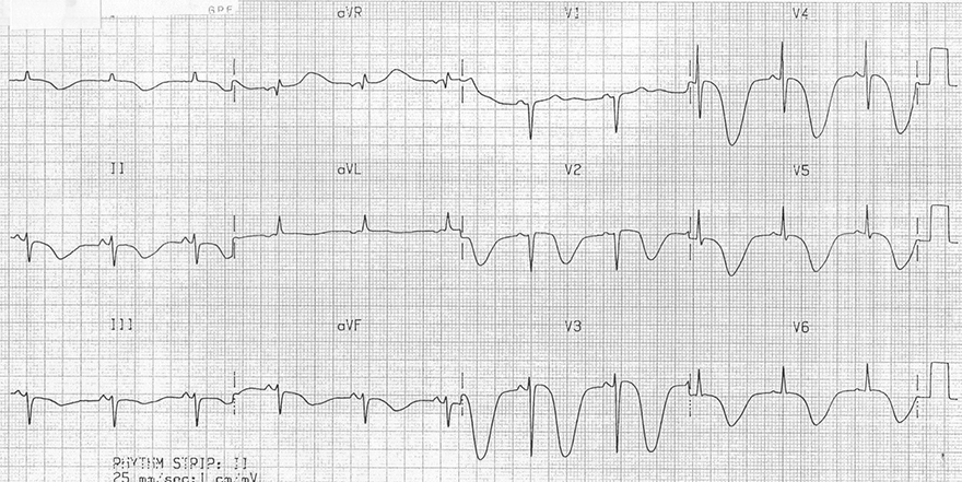 ECG inverted cerebral T waves and raised intracranial pressure