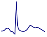 ECG double peak, camel hump T wave