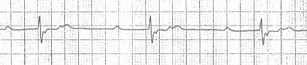 ECG double camel hump T waves and sedond degree (2nd) AV heart block, Mobitz 2 (2:1)