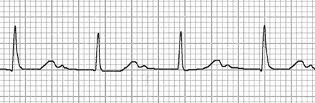 ECG double T waves camel hump and first av block (T wave and P wave)