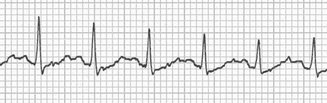 ECG double camel hump T waves (T wave and P wave) and sinus tachycardia