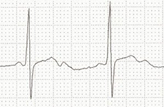 ECG hypokalemia double camel hump T waves (T wave and U wave)