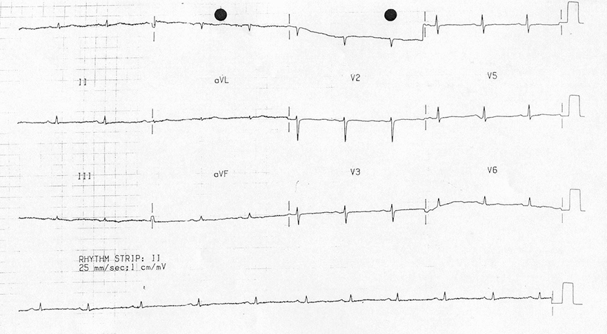 ECG flattened T waves hypothyroidism