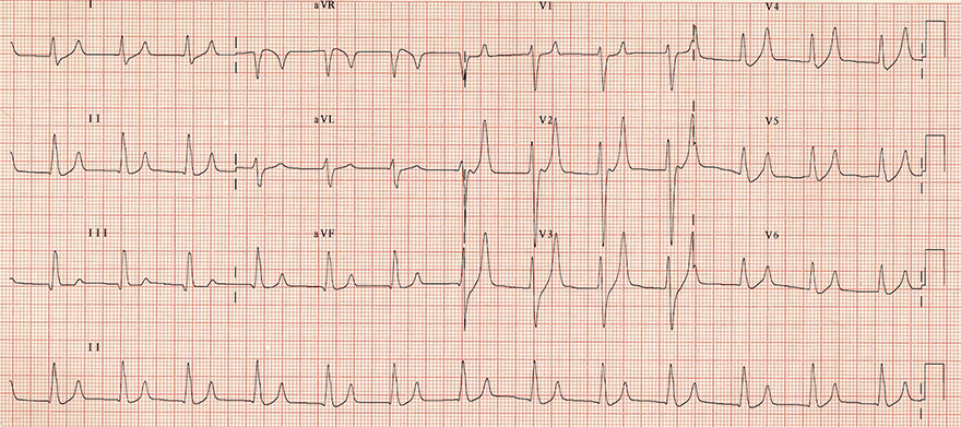 ECG tall symmetrical eiffel tower T waves and hyperkalemia