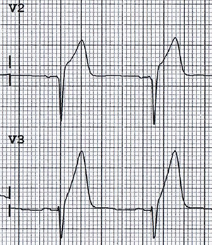 ECG hyperacute T wave with ischaemia - infarction