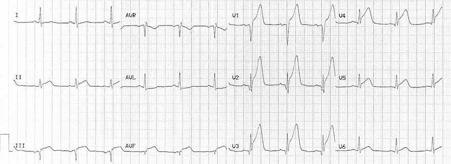 ECG hyperacute T waves and acute anterior inferior STEMI infarction