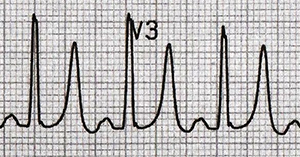 ECG hyperkalemia and Eiffel tower T waves