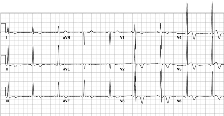 ECG inverted T wave and hypertrophyc cardiomyopathy