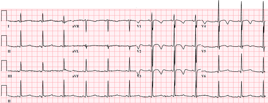 ECG T wave inversion in young woman with hyperventilation