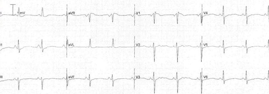 ECG hypokalemia flattened T waves