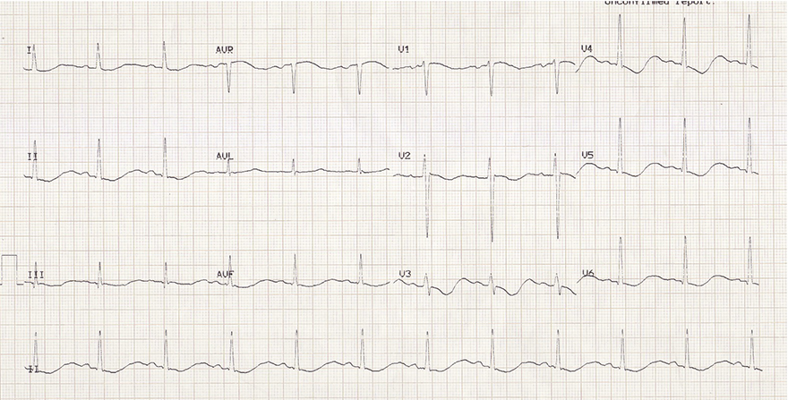 ECG hypokalemia and biphasic T wave terminal positivity
