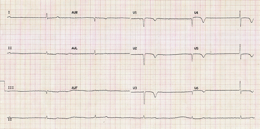 ECG inverted T wave and hypothyroidism