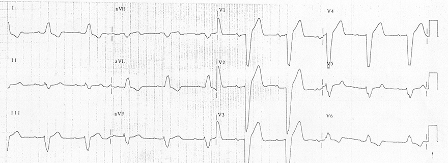 ECG inverted T wave and left bundle branch block (LBBB)