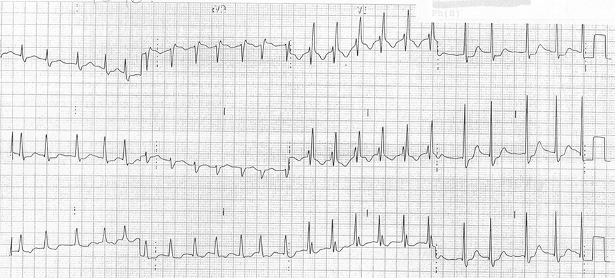 ECG inverted T wave and right bundle branch block (RBBB)