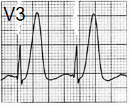 ECG hyperacute T wave and myocardial ischaemia and infarction