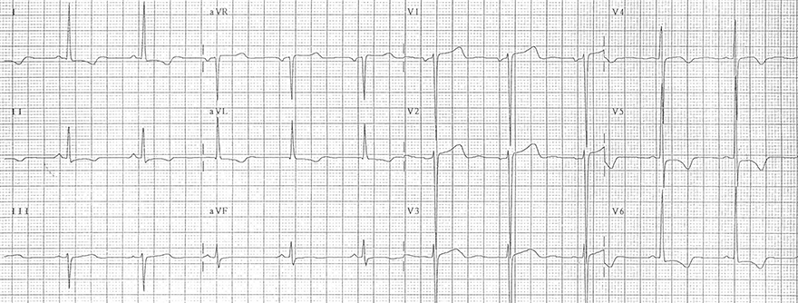 ECG left ventricular hypertrophy and inverted T wave