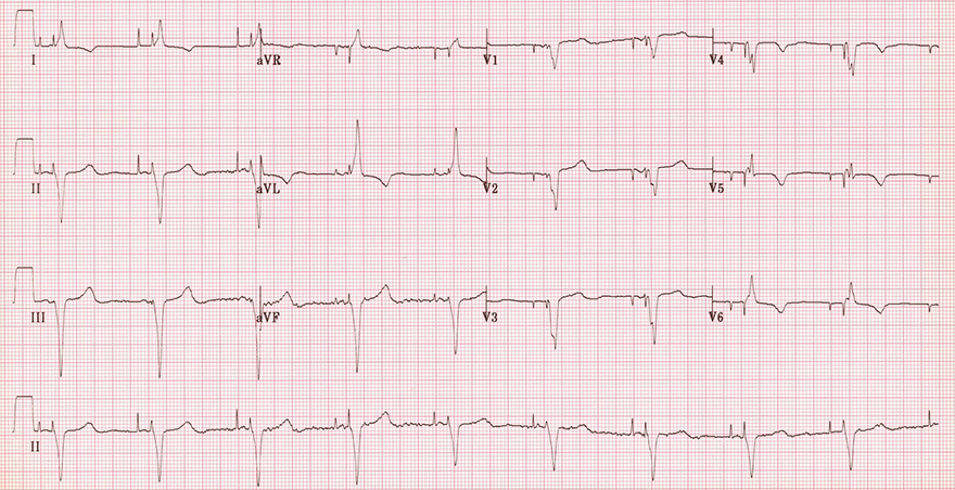 ECG inverted T waves and pacemaker, atrial ventricular pacing