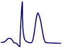 ECG tall, narrow, symmetrical, hyperacute, peaked T wave