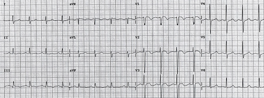 ECG inverted T wave and pulmonary embolism